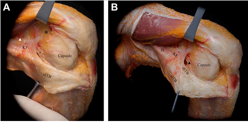 knee baton rouge anterolateral ligament anterolateral complex anterior cruciate ligament all acl reconstruction acl