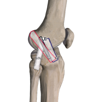 pivot shift IT band anterolateral ligament anterolateral complex all alc acl