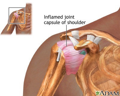 shoulder specialist shoulder pain frozen shoulder adhesive capsulitis