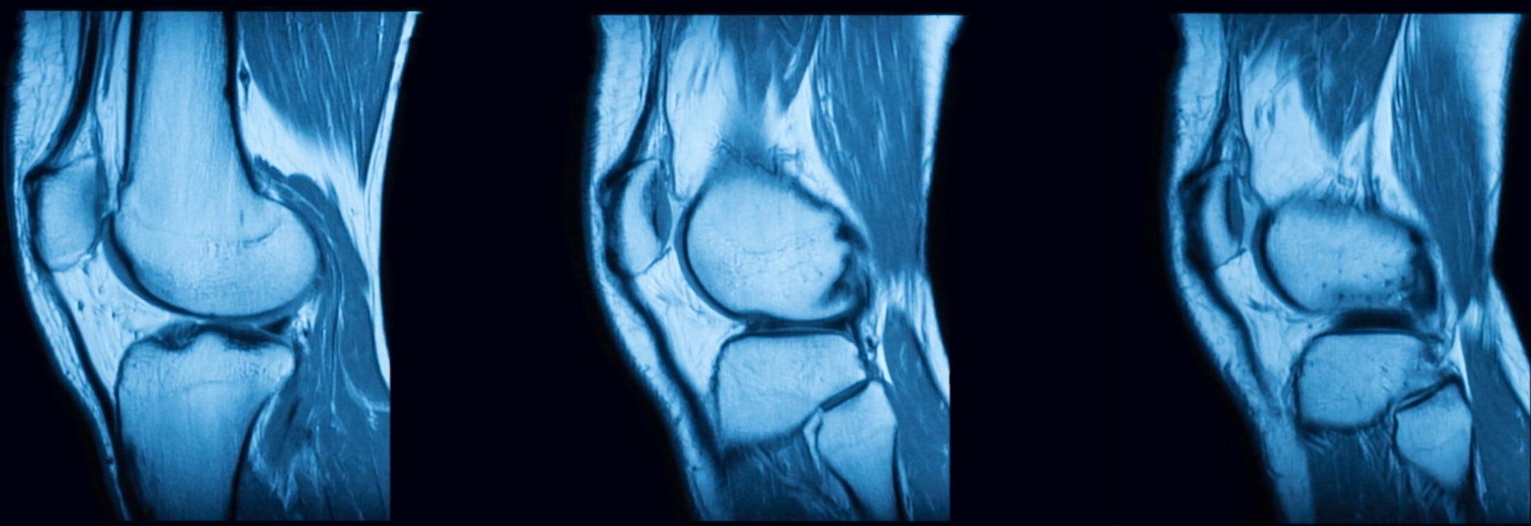 Cartilage damage in knee