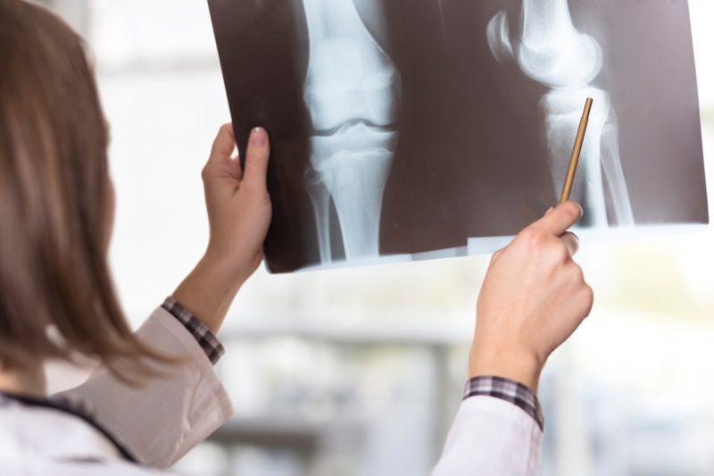 sports medicine sports injury pain oats maci knee doctor knee injury cartilage transplant cartilage biouni baton rouge arthritis aci