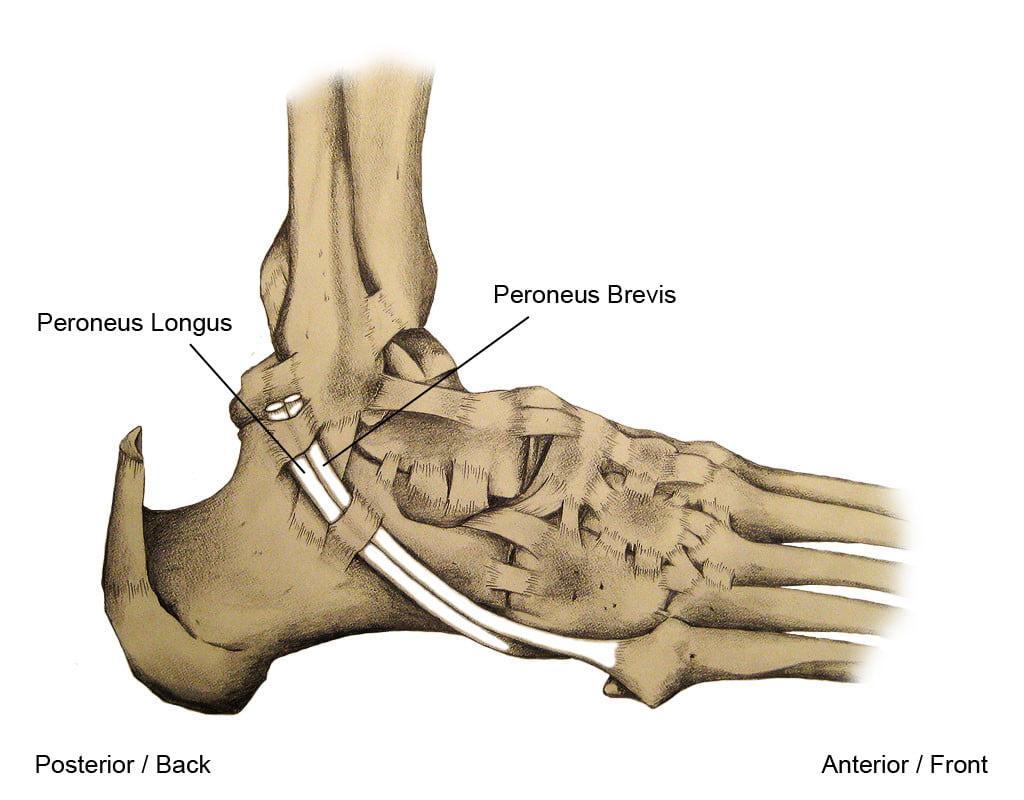 Peroneal Tendonitis Amp Injury Dr Jeremy M Burnham Md