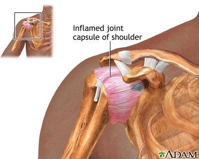sports medicine sports injury shoulder specialist shoulder pain pain knee doctor injury frozen shoulder adhesive capsulitis