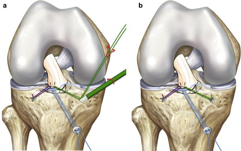 tibial spine tibial eminence pediatric knee doctor anterior cruciate ligament adolescent acl tear acl